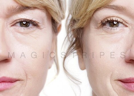 PETA-Approved Eyelid Lift Makes Waves in the Plastic Surgery World