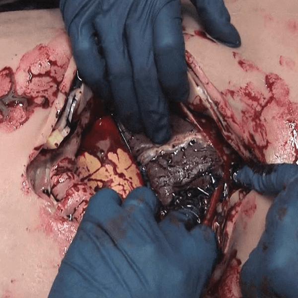 human patient simulator, cut suit, surgical operations, trauma training