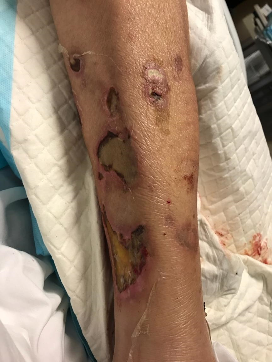 Woman Covered With Bloody Blisters Shows Danger of Eating
